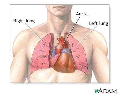 Medlineplus Medical Encyclopediaheart Lung Transplant Series