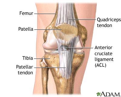 Medlineplus Medical Encyclopediaanterior Cruciate Ligament Repair