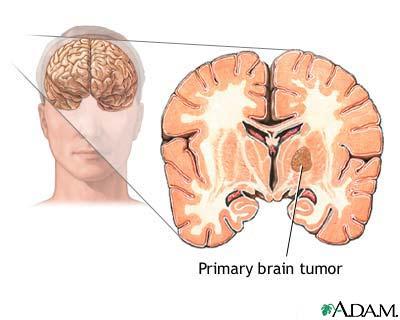 brain tumor diagram easy rules of wiring diagram u2022 rh ideoder co uk brain tumor diagnostics market brain tumor diagnostic test