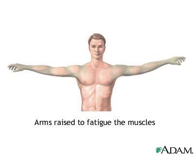 MedlinePlus Medical Encyclopedia: Muscle fatigue